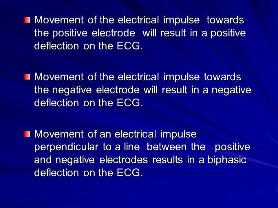 Movement of the electrical impulse towards the positive electrode will result in a positive deflection on the ECG.