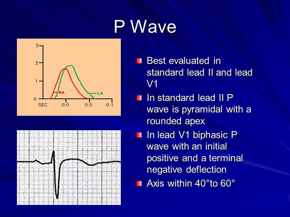 P Wave Best evaluated in standard lead II and lead V1