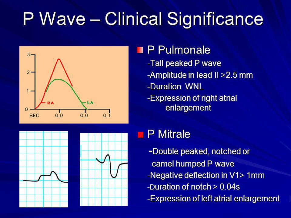 P Wave – Clinical Significance