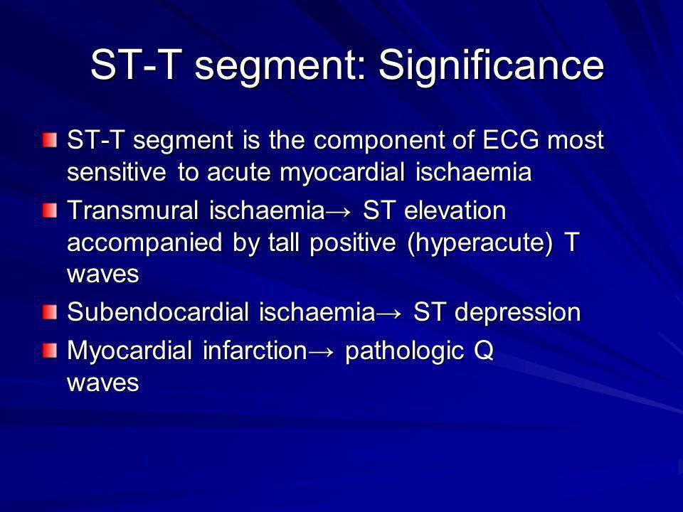 ST-T segment: Significance