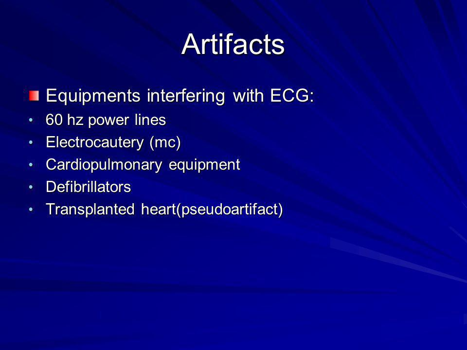 Artifacts Equipments interfering with ECG: 60 hz power lines