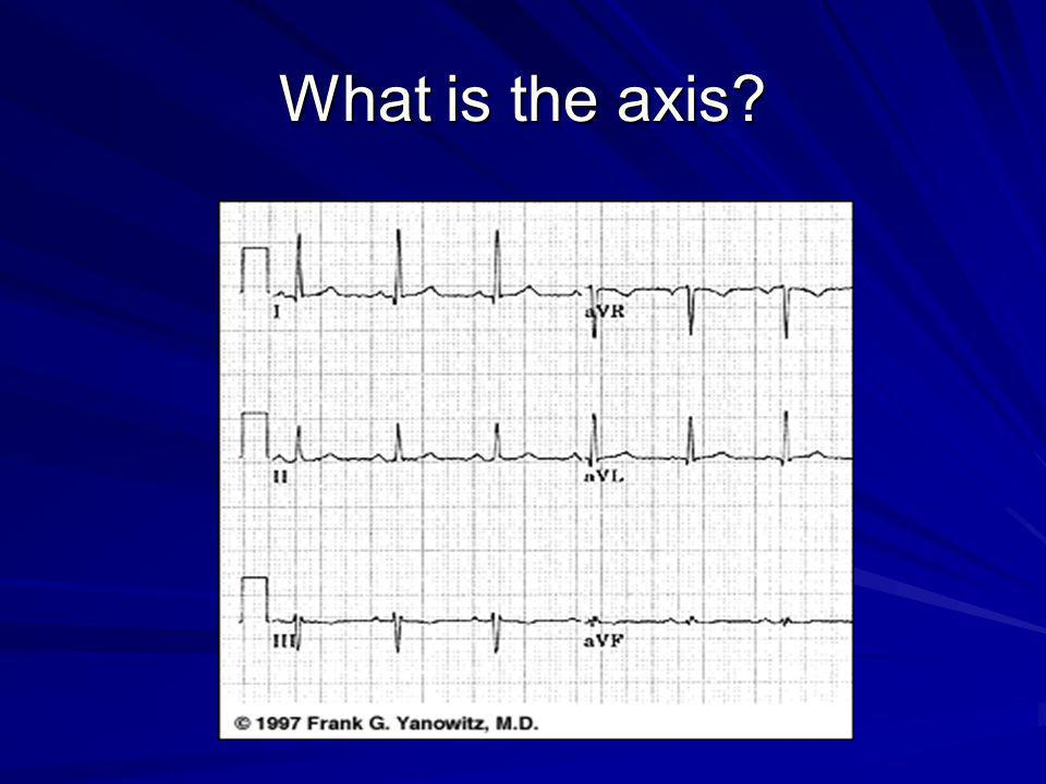 What is the axis