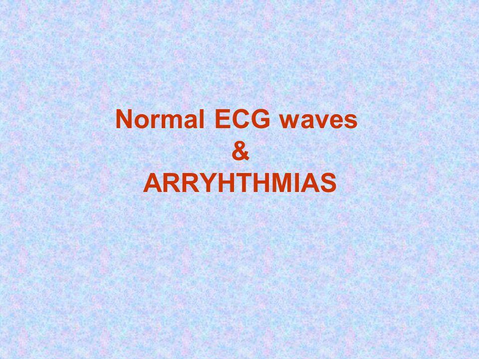 Normal ECG waves & ARRYHTHMIAS
