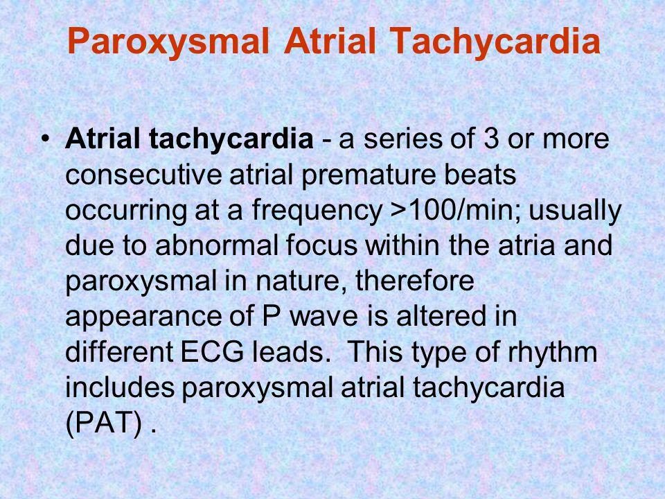 Paroxysmal Atrial Tachycardia