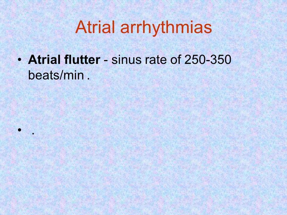 Atrial arrhythmias Atrial flutter - sinus rate of 250-350 beats/min. .