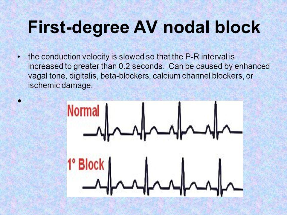 First-degree AV nodal block