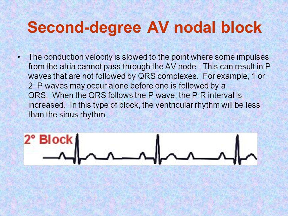 Second-degree AV nodal block