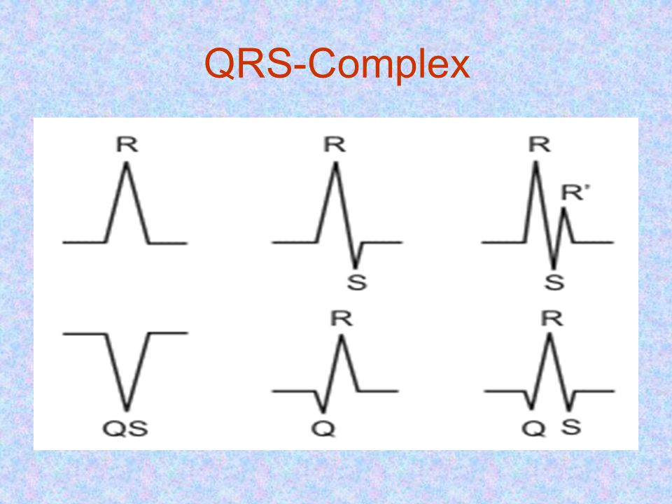 QRS-Complex