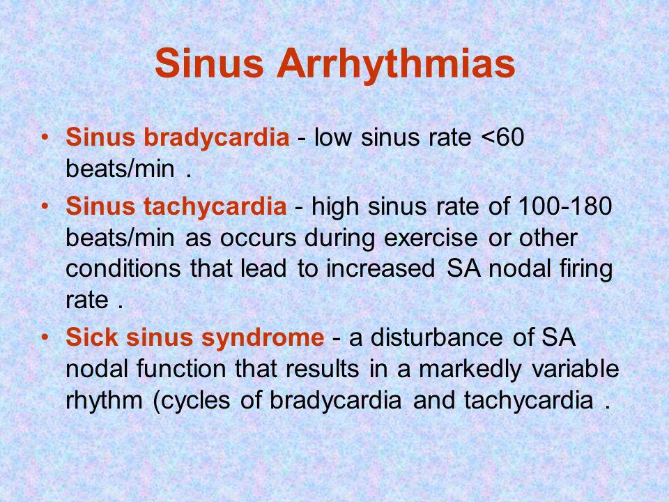 Sinus Arrhythmias Sinus bradycardia - low sinus rate <60 beats/min.