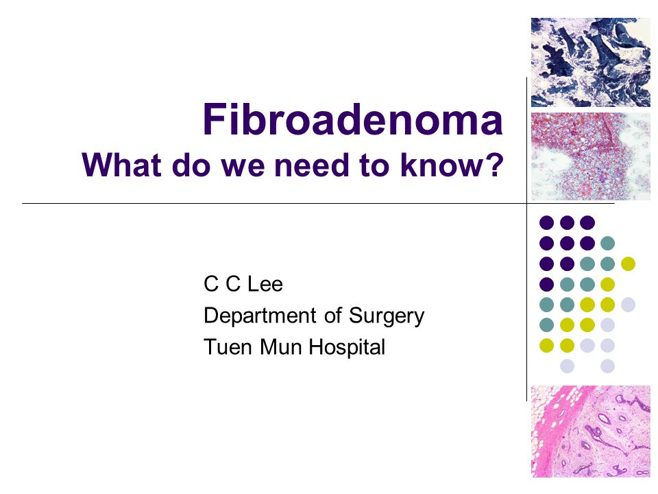 Fibroadenoma What do we need to know