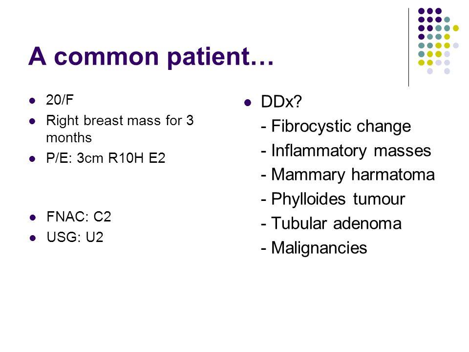 A common patient… DDx - Fibrocystic change - Inflammatory masses