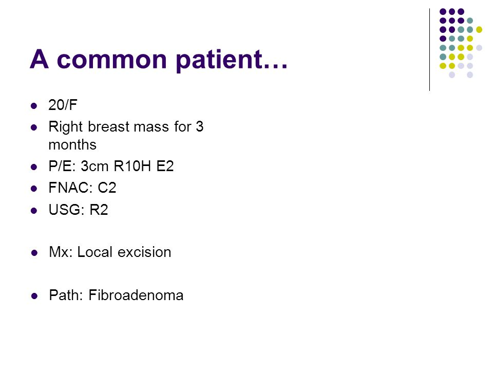 A common patient… 20/F Right breast mass for 3 months P/E: 3cm R10H E2