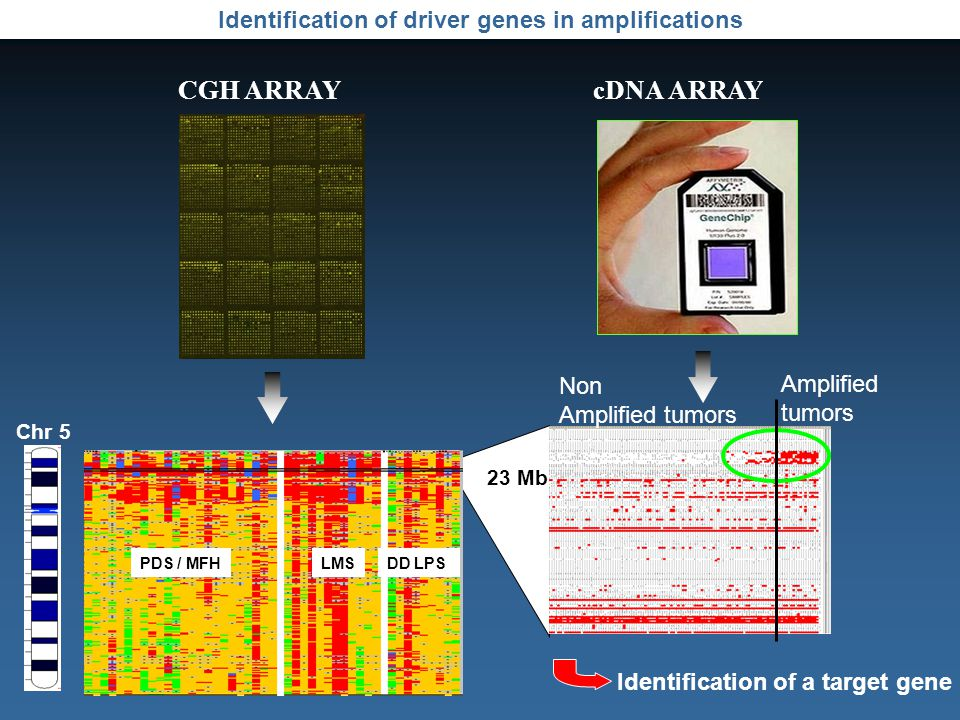 Identification of driver genes in amplifications