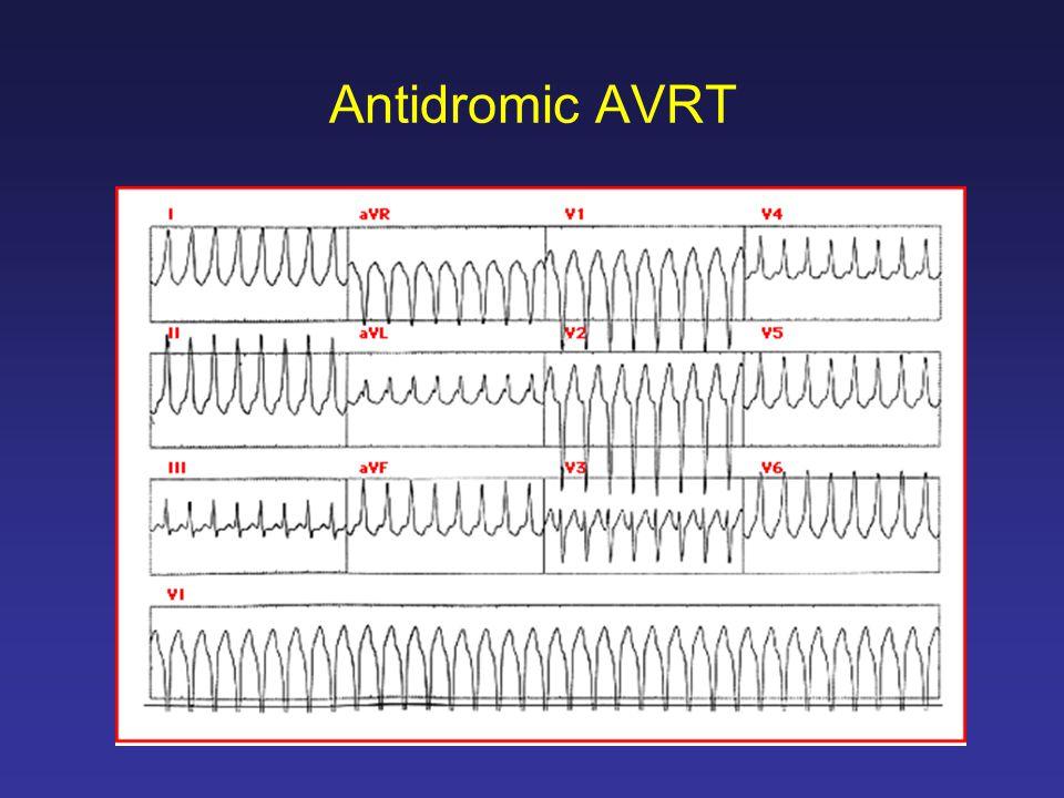 Antidromic AVRT
