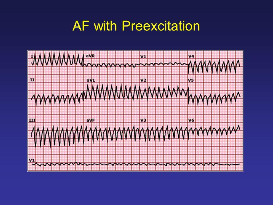 AF with Preexcitation