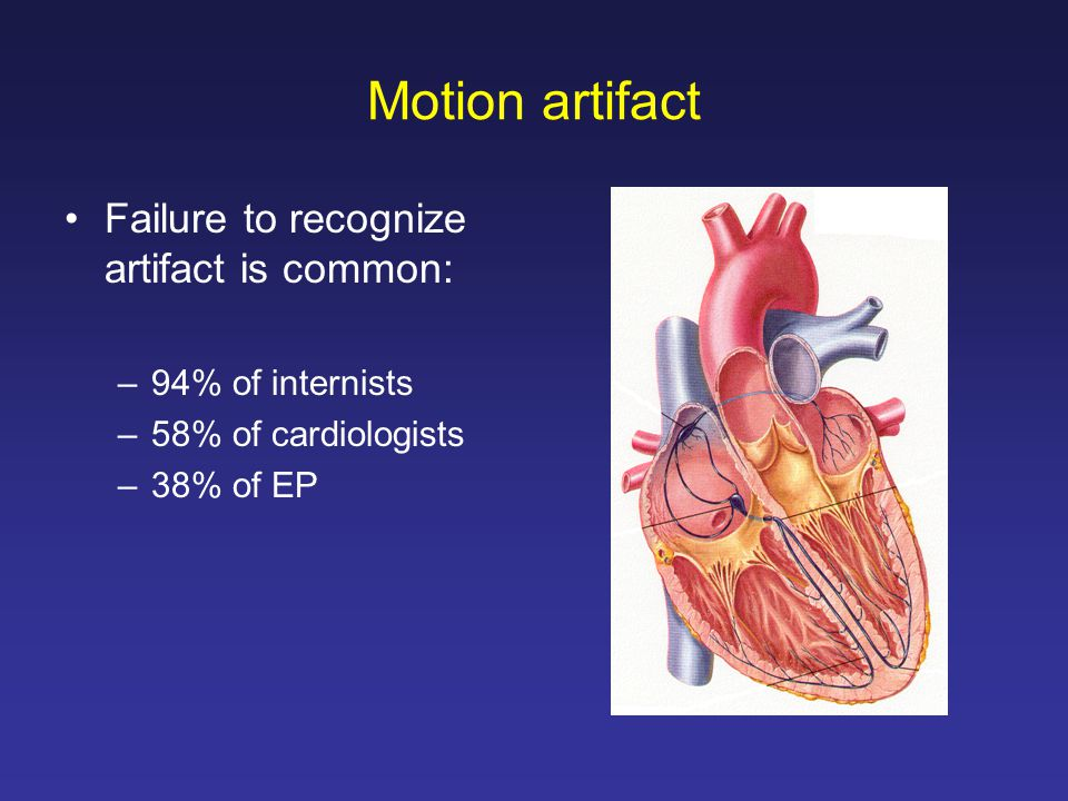 Motion artifact Failure to recognize artifact is common: