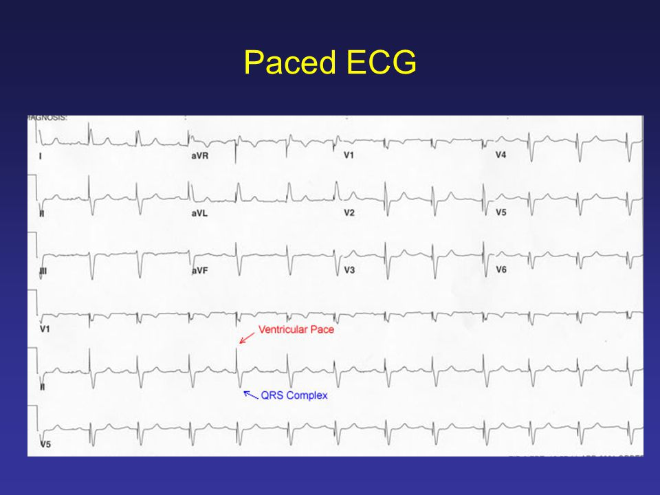 Paced ECG
