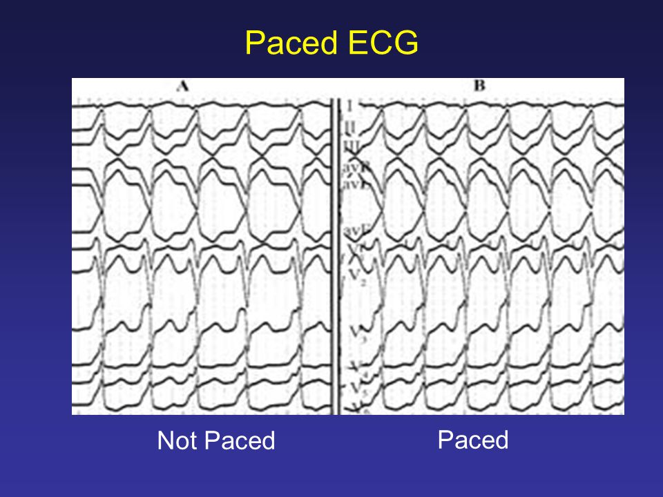 Paced ECG Paced Not Paced