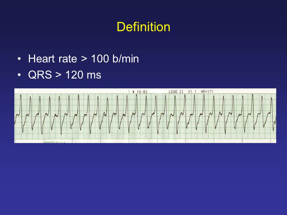 Definition Heart rate > 100 b/min QRS > 120 ms