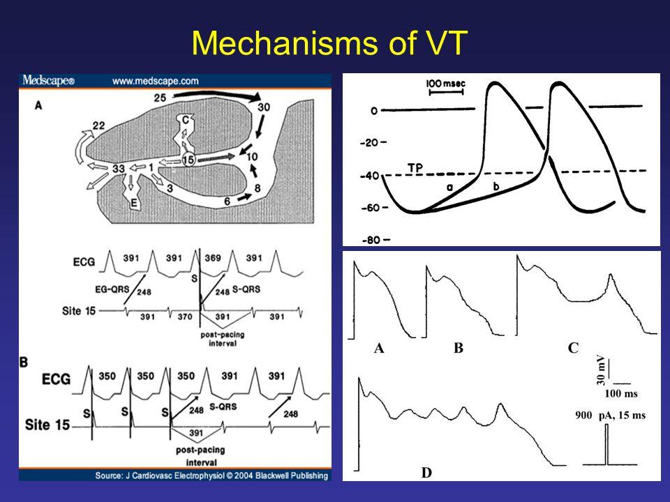 Mechanisms of VT