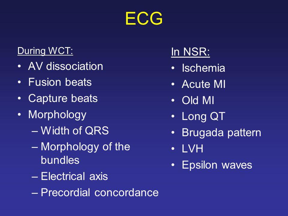 ECG In NSR: AV dissociation Ischemia Fusion beats Acute MI