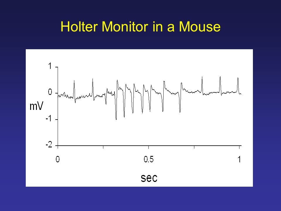Holter Monitor in a Mouse