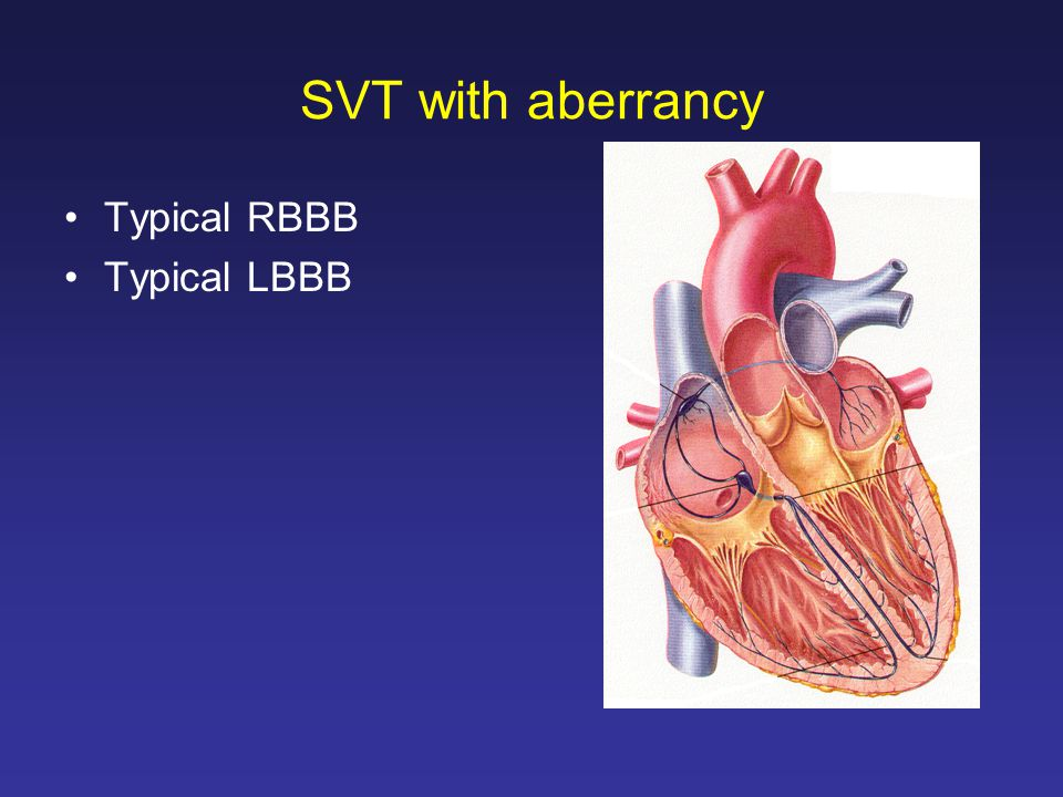 SVT with aberrancy Typical RBBB Typical LBBB