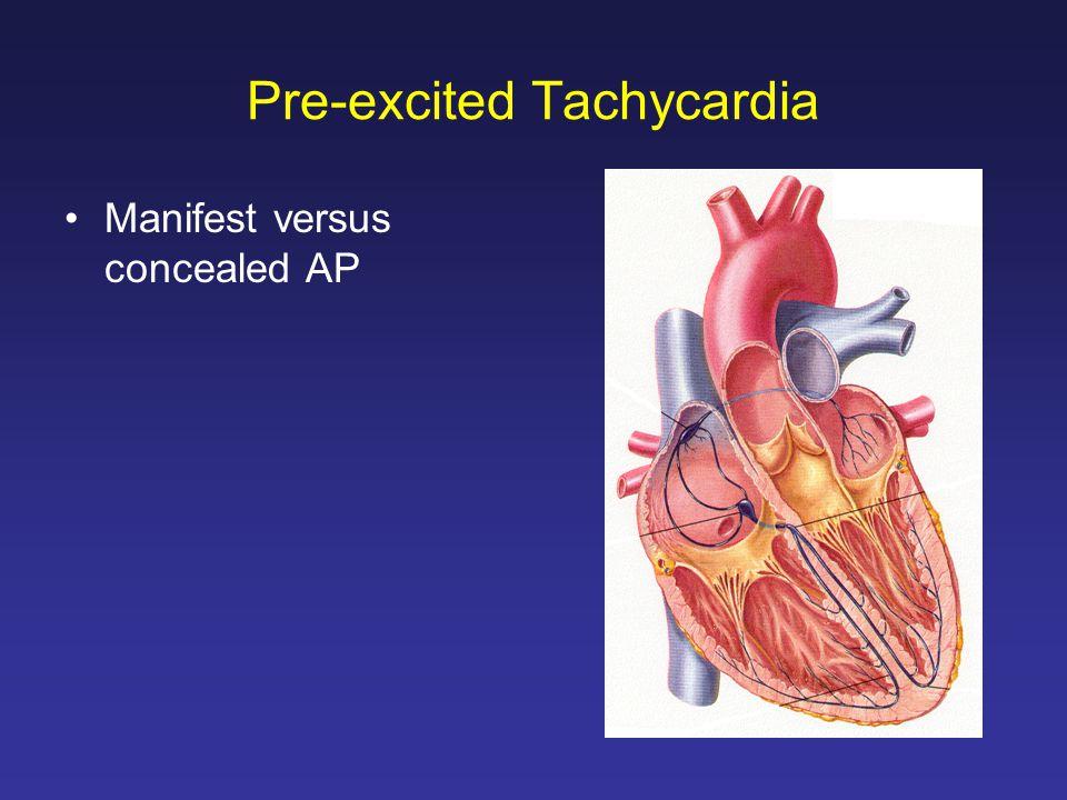 Pre-excited Tachycardia