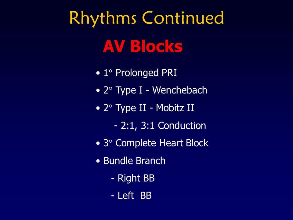 Rhythms Continued AV Blocks 1 Prolonged PRI 2 Type I - Wenchebach