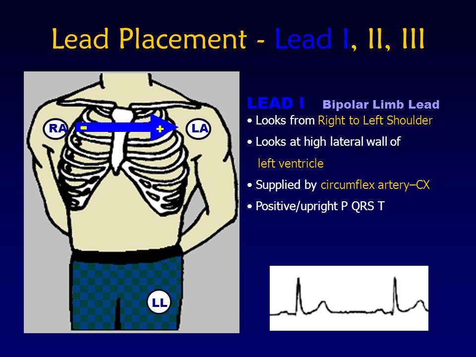 Lead Placement - Lead I, II, III