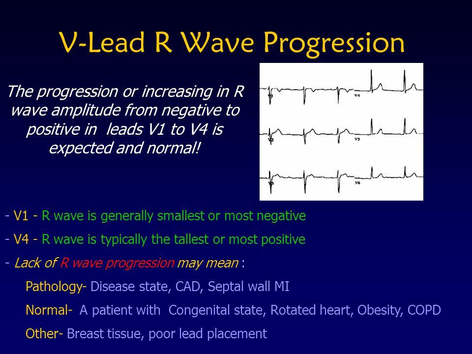 V-Lead R Wave Progression
