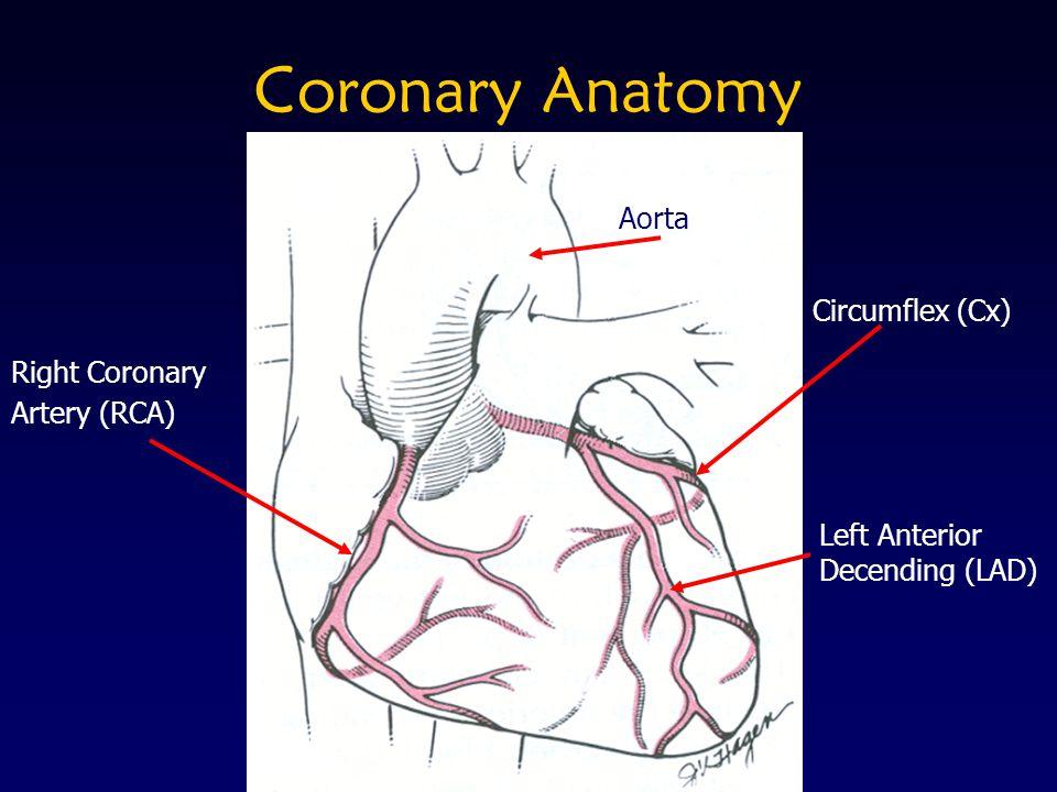 Coronary Anatomy Aorta Circumflex (Cx) Right Coronary Artery (RCA)