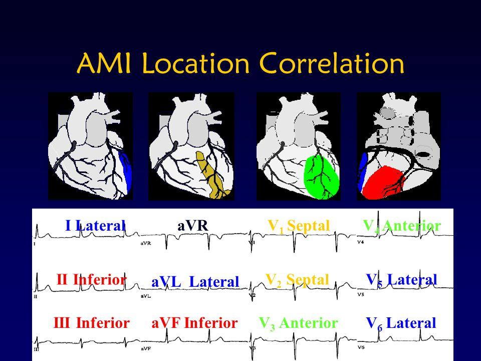 AMI Location Correlation