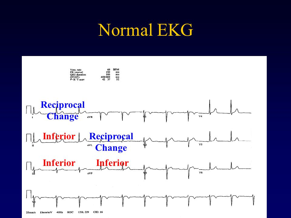 Normal EKG Reciprocal Change Inferior Reciprocal Change Inferior