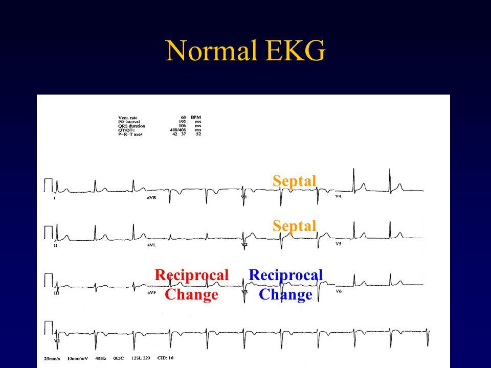 Normal EKG Septal Septal Reciprocal Change Reciprocal Change