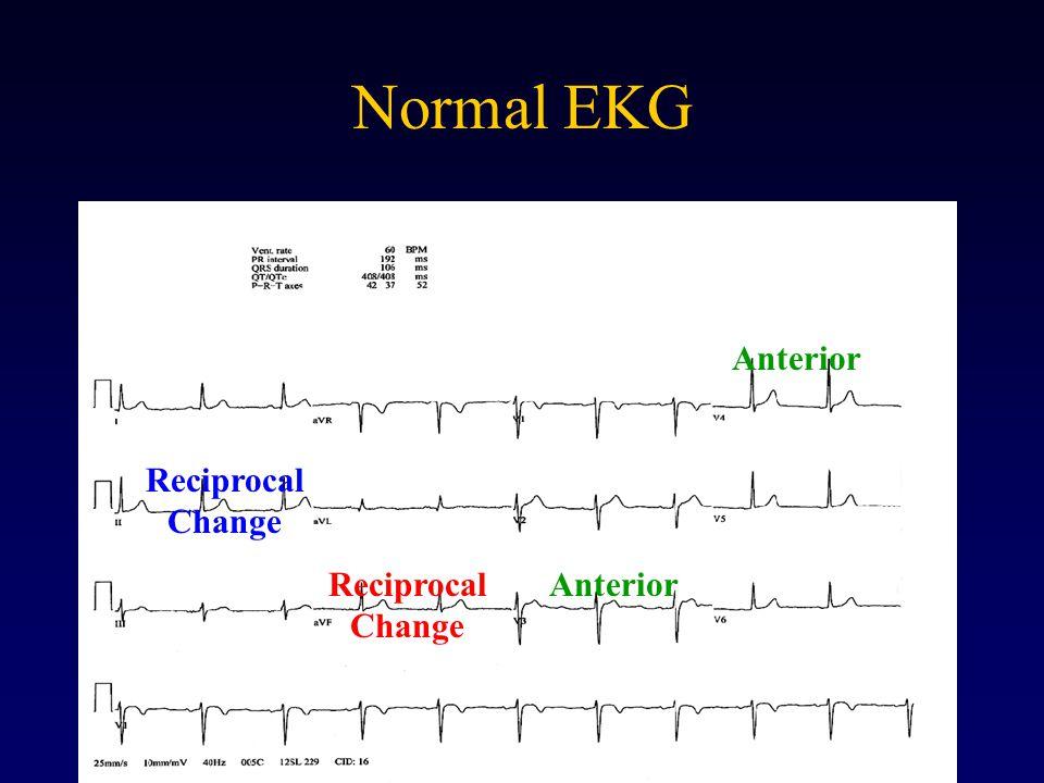 Normal EKG Anterior Reciprocal Change Reciprocal Change Anterior