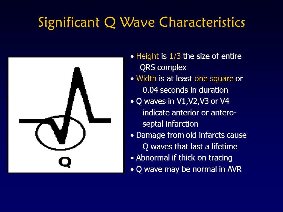 Significant Q Wave Characteristics