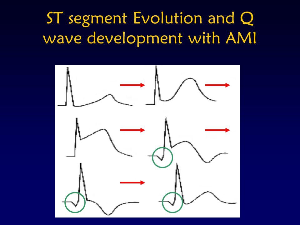 ST segment Evolution and Q wave development with AMI