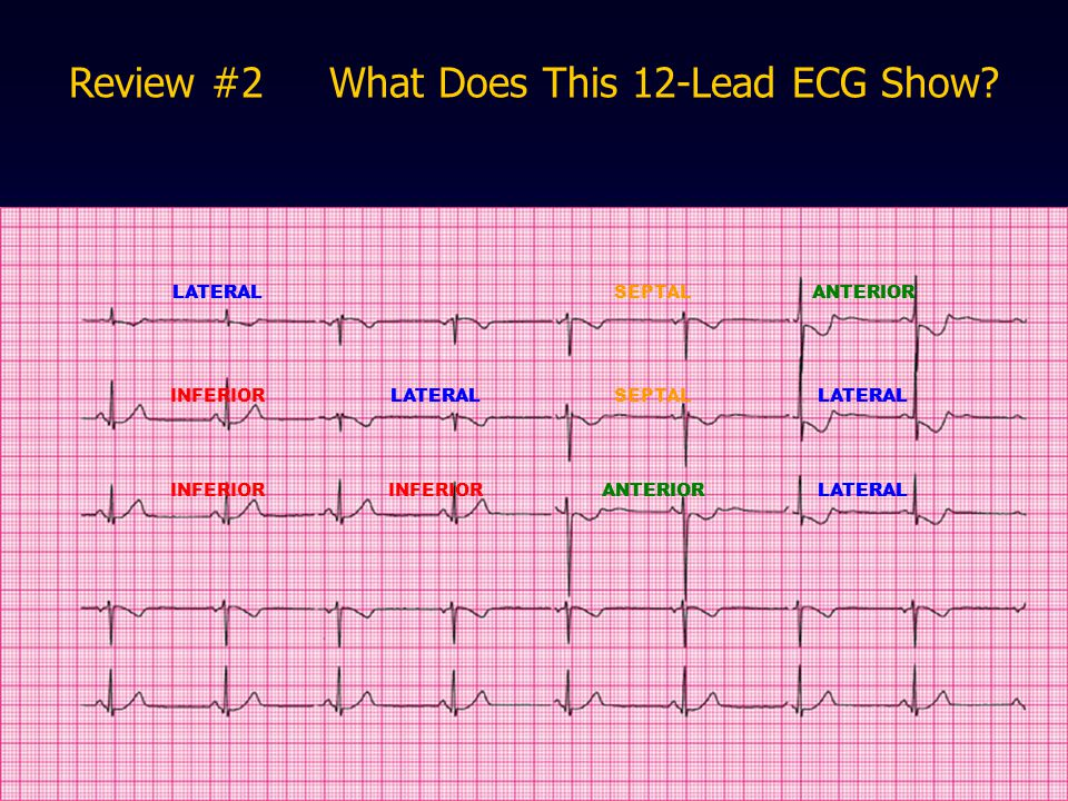 Review #2 What Does This 12-Lead ECG Show
