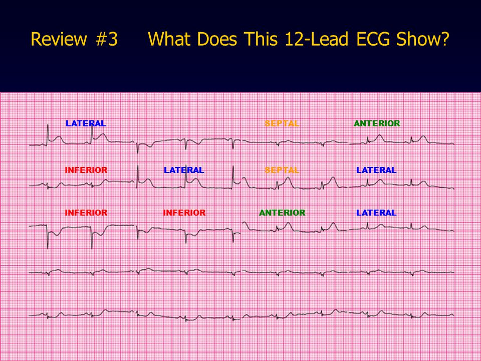 Review #3 What Does This 12-Lead ECG Show