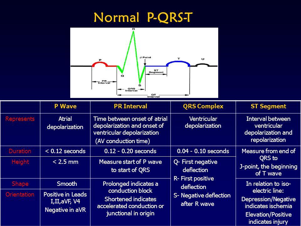 Normal P-QRS-T P Wave PR Interval QRS Complex ST Segment Represents