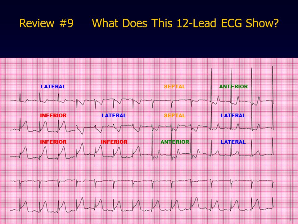 Review #9 What Does This 12-Lead ECG Show