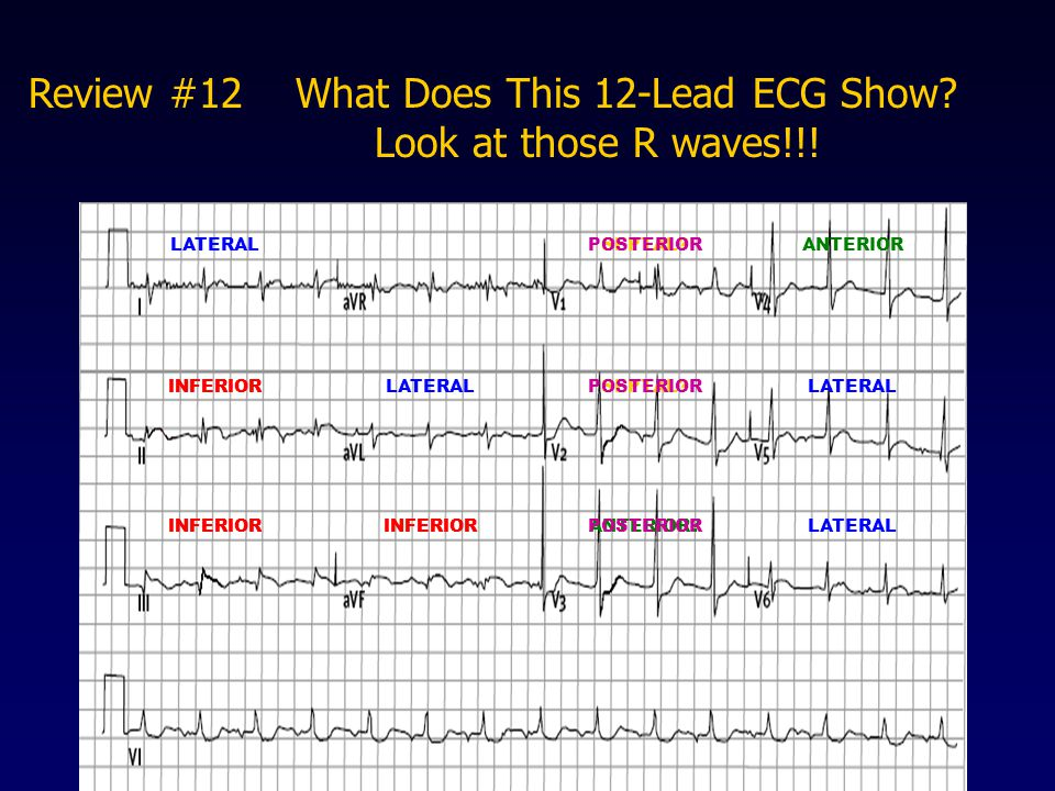 Review #12 What Does This 12-Lead ECG Show Look at those R waves!!!