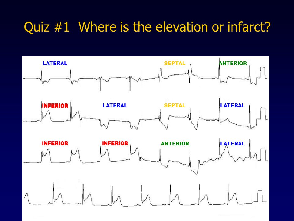 Quiz #1 Where is the elevation or infarct