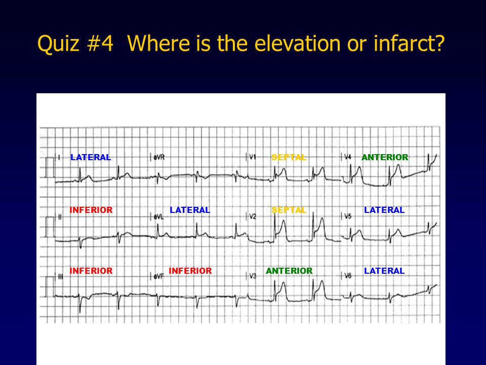 Quiz #4 Where is the elevation or infarct