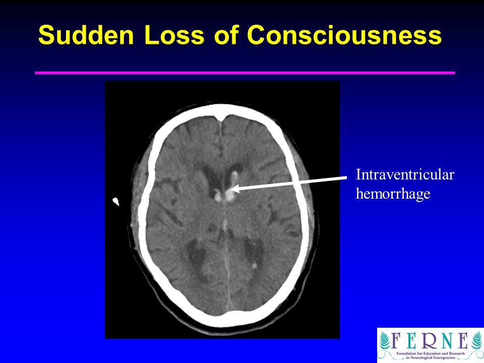 Sudden Loss of Consciousness