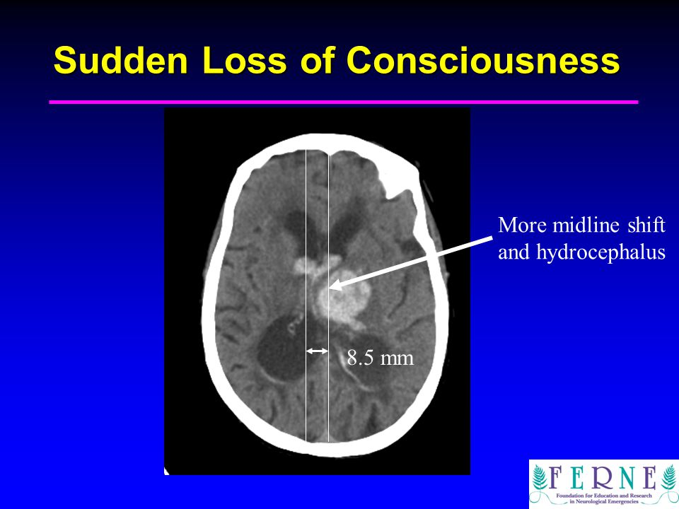 Sudden Loss of Consciousness