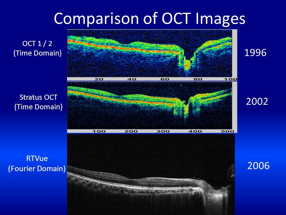 Comparison of OCT Images