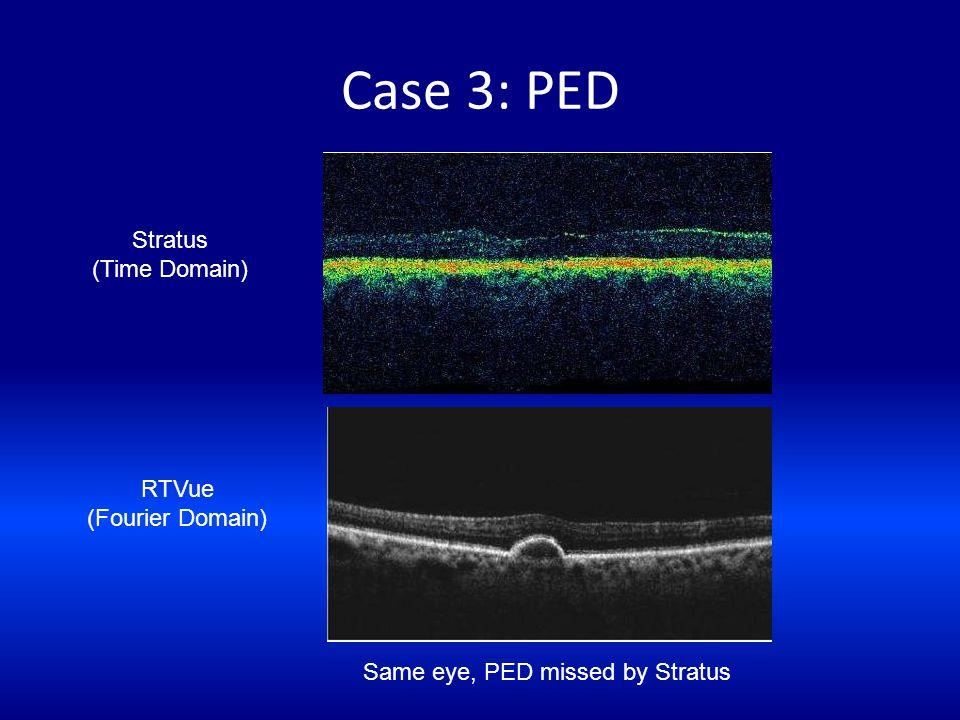 Same eye, PED missed by Stratus