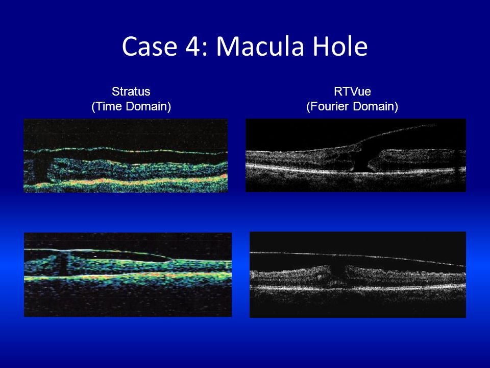 Case 4: Macula Hole Stratus (Time Domain) RTVue (Fourier Domain)